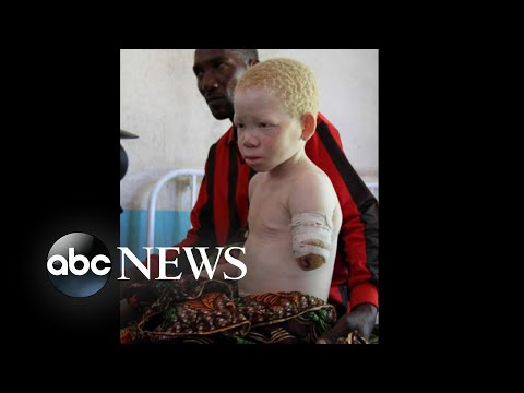 Tanzanian Children Lost Limbs In Brutal Attacks For Having Albinism: Part 1