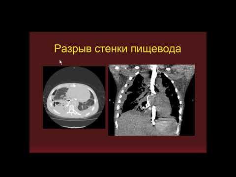 Михайловская Е.М. «КТ в диагностике заболеваний ЖКТ»
