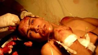 Accidente en Sabana Larga.MOV