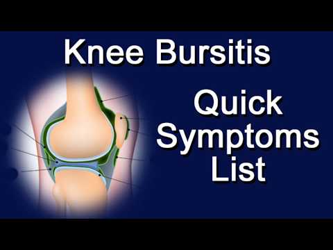 Knee Bursitis - Quick Symptoms List