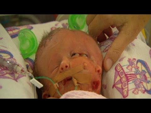 Baby with two heads born in Sydney | Baby with two heads ...