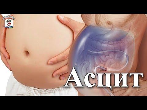 """""""На приеме у врача"""" Выпуск 54 - Асцит"""