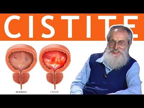 cistite da radiazione carcinoma della prostata