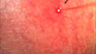 Laser Treatment of Facial Veins. Norwich, UK Thumbnail