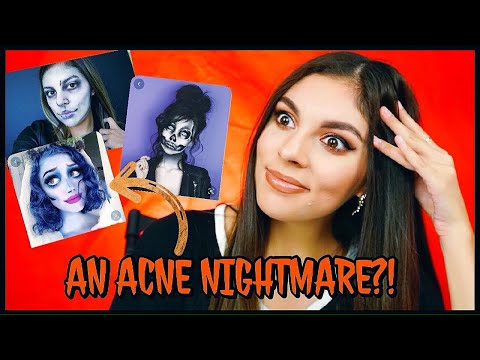 Why Halloween Makeup is TERRIBLE with Acne! thumbnail