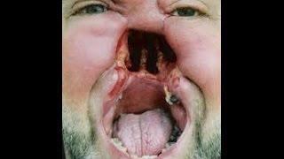 видео Что будет если таракан заползёт в ухо!СМОТРЕТЬ ВСЕМ ПОЛНЯ ЖЕСТЬ,его достают!!!