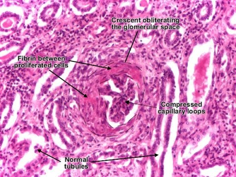 Rapidly Progressive Glomerulonephritis (RPGN)