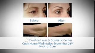 Thermage CPT Skin Tightening Treatment Carolina Laser Dr Anne White Thumbnail