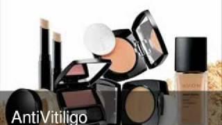 Avon Vitiligo Makeup Thumbnail