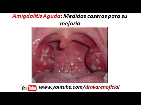 Como saber si tengo amigdalitis