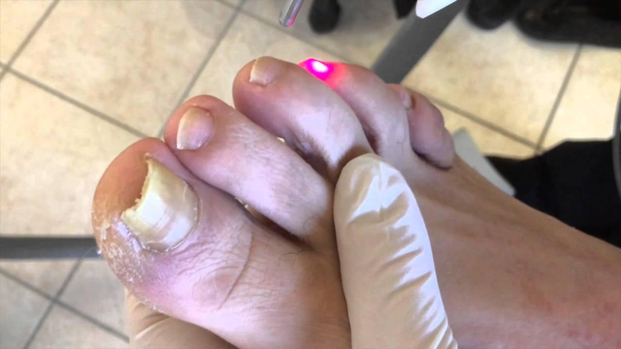 mycose ongle pied traitement laser