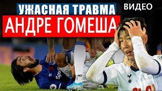 Ужасная травма Андреа Гомеша после фола Сон Хын Мина в матче Тоттенхэм 1 1 Эвертон ВИДЕО