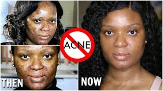 **NOT SPONSORED** HOW I FINALLY CLEARED MY ACNE & SCARS + DERMATOLOGIST MEDICATIONS REVEALED | OMABE