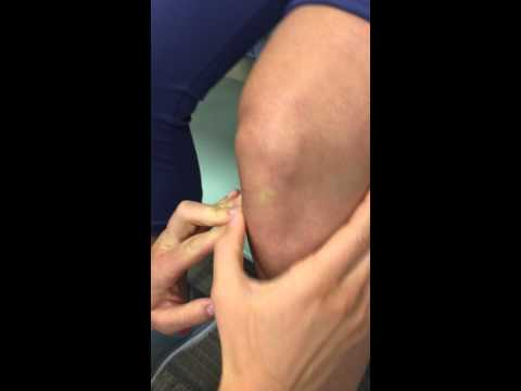 Palpations - knee (soft tissue)