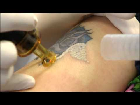 Fox News - New Procedure Drastically Cuts Tattoo Removal Time