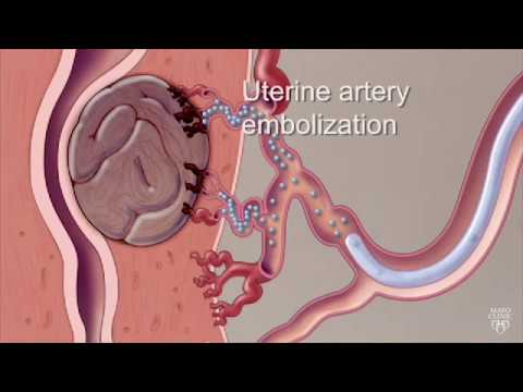 Mayo Clinic Minute: Know Options For Uterine Fibroids