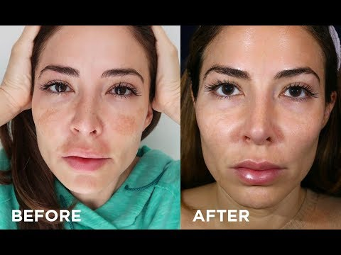 How I Got Rid of Melasma On My Face | My Clear + Brilliant