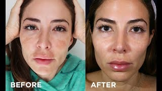 Health & beauty vlogger bianca jade shares how she cured her melasma with the clear + brilliant permea laser treatment, and got smoother pores, tight...