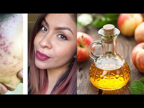 ways-to-use-apple-cider-vinegar-for-your-face