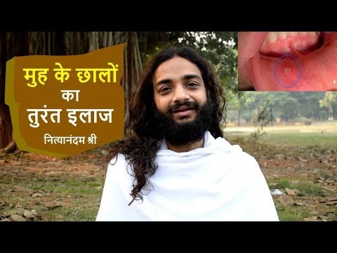 MOUTH SORES INSTANT CURE | AYURVEDIC REMEDY FOR MOUTH ULCER BY NITYANANDAM SHREE