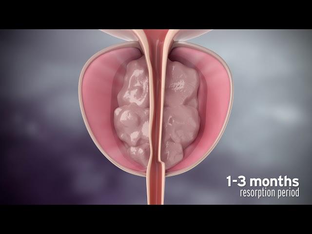 vapor de tratamiento de próstata agrandado