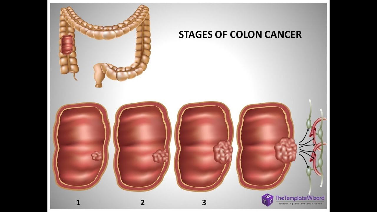 Colon cancer powerpoint presentation template thetemplatewizard colon cancer powerpoint presentation template thetemplatewizard youtube alramifo Choice Image