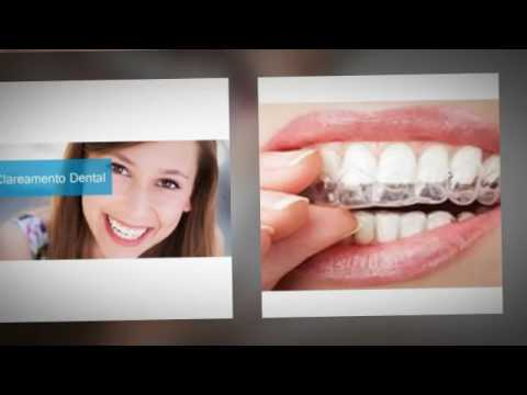 Preco Clareamento Dental A Laser Sorriso Magico Youtube