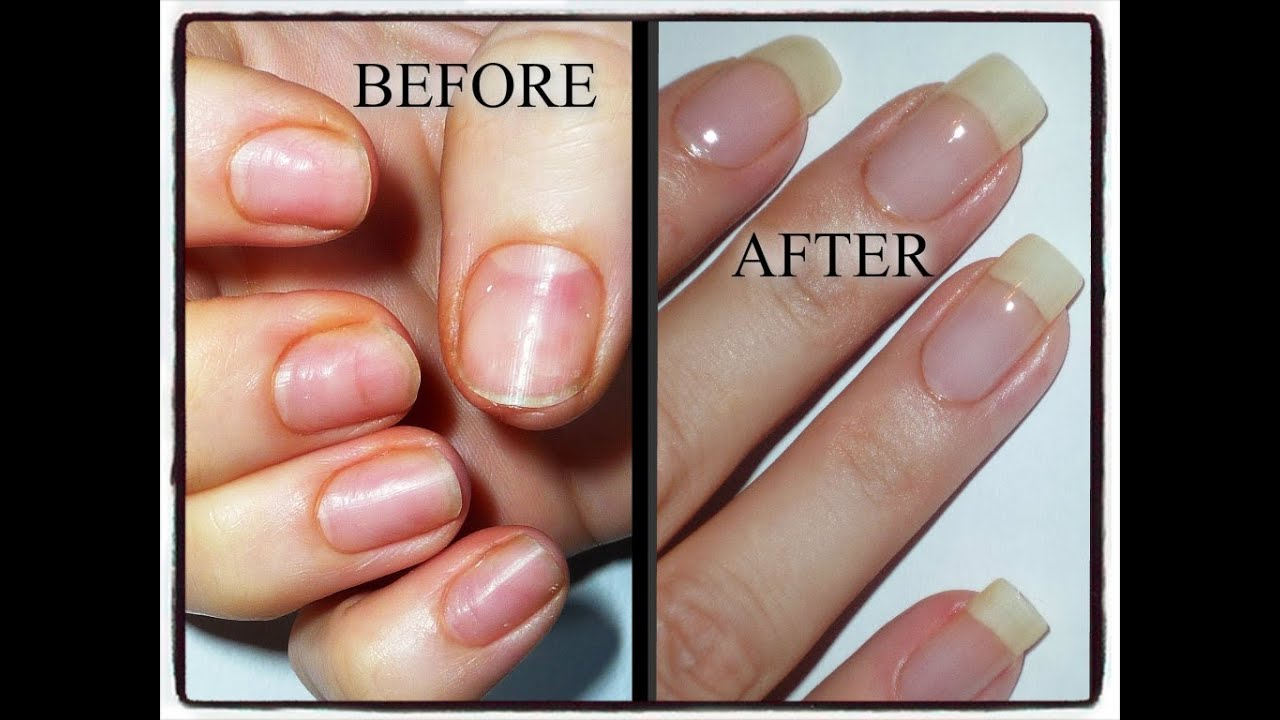 My Nail Journey-Growing Natural Nails after damage from Acrylics ...