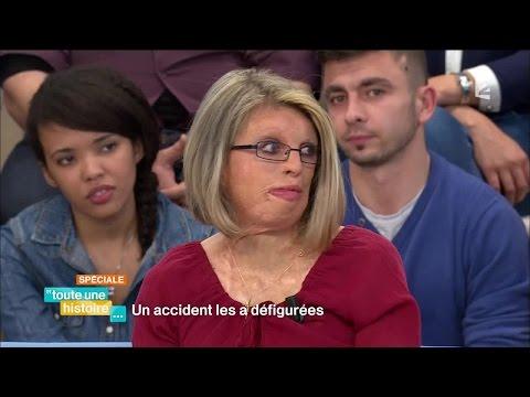 Toute une histoire : Un accident les a défigurées - REPLAY