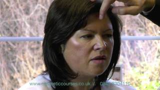 Droopy Eyebrows after Botox Eyebrow Lift : Cause & Prevention