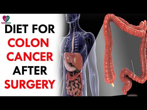 Diet For Colon Cancer After Surgery - Health Sutra