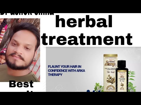 Dr ashok sinha herbal treatment result and work   गंजेपन का रामबान इलाज