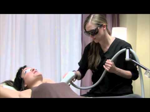 Pain Free Alma Soprano Laser Hair Removal Demo
