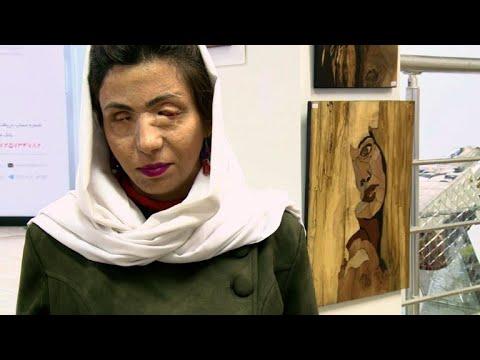 الفن يمنح ضحايا هجمات الحمض الكاوي في إيران هوية جديدة
