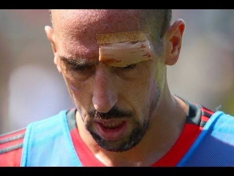 Franck Ribery suffers b lood ied forehead after colliding with goalpost at Bayern Munich training