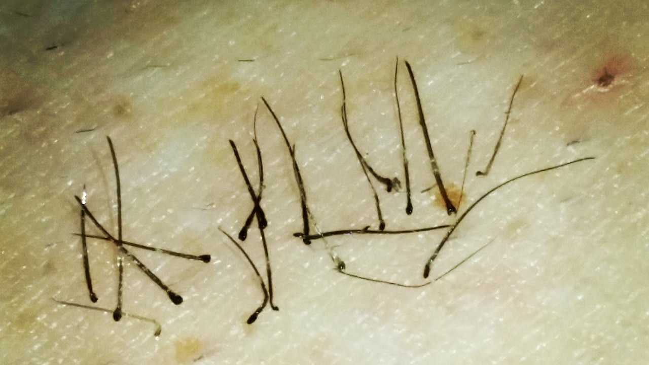 Trich Hair Pulling Satisfying Close Up Plucking Juicy Black Roots