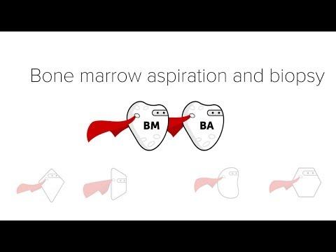 Bone Marrow Biopsy & Aspiration (BMBx)