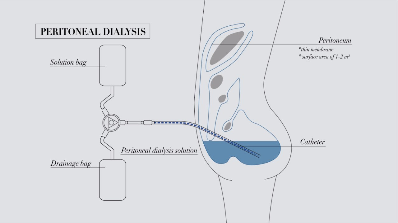 understanding peritoneal dialysis