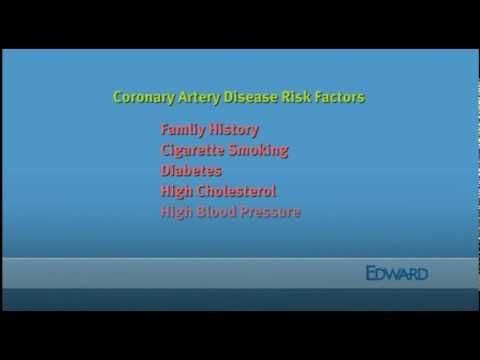 Coronary Artery Disease Risk Factors