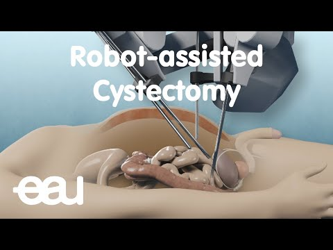 Robot-Assisted Cystectomy