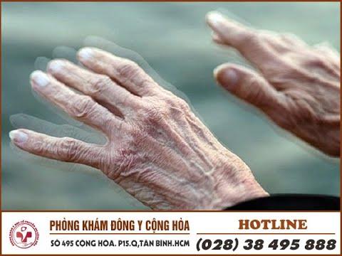Bệnh Parkinson là gì? Nguyên nhân, triệu chứng, biến chứng cần biết