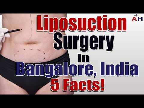 Liposuction Surgery in Bangalore, India - 5 Facts!