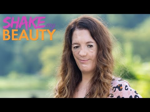 Actress With Facial Difference Redefines Beauty | SHAKE MY BEAUTY