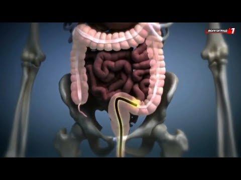 Рак кишечника. Выход - видеоколоноскопия