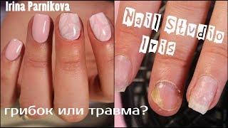 Маникюр на проблемных ногтях. Грибок или травма ногтя?