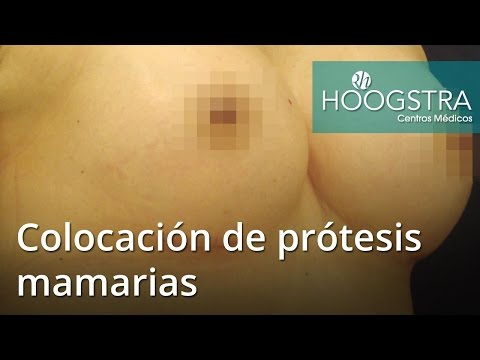 Colocación de prótesis mamarias (16070)