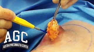 Gyno Surgery With An Expert Doctor - Austin Gynecomastia Center