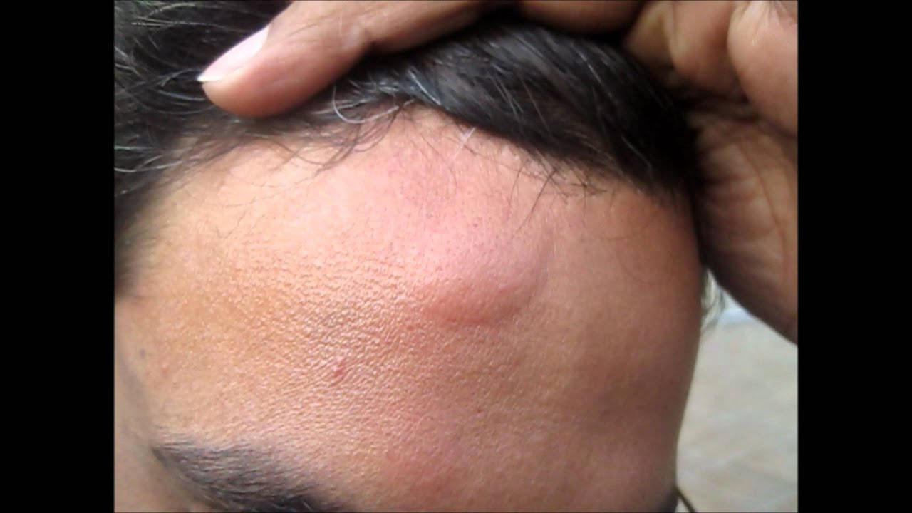 Head Injury Bump Home Treatment Youtube