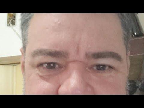 ATENDIMENTO EM ALAGOINHA-BA  DIA 23-01-2020