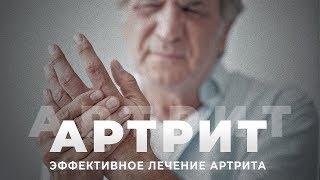 АРТРИТ | Как лечить артрит | Реабилитация пожилого человека после артрита